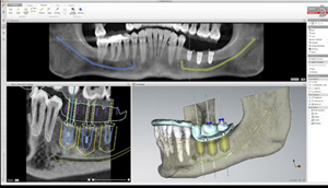 Cirugía dental guiada por ordenador